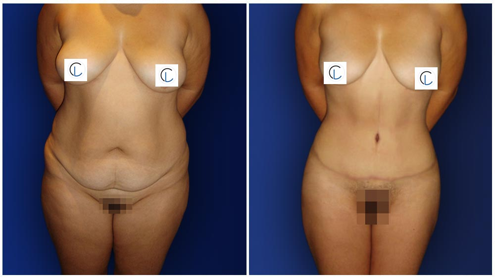 0-march-tummytuck-1