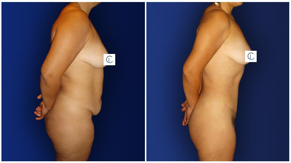 0-march-tummytuck-2